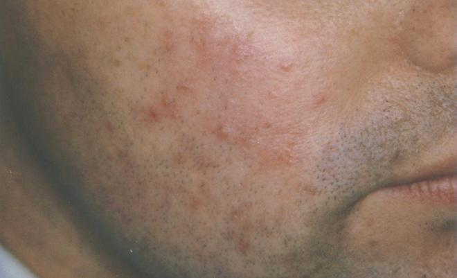 Acne Before Treament